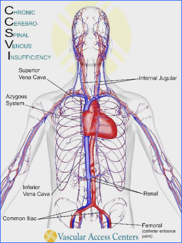 The major veins addressed during the CCSVI procedure are the left and right jugular veins that